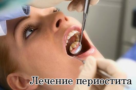 Лечение периостита
